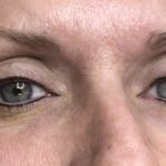 Upper and Lower Eyelinber