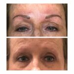 Mirobladed Eyebrows
