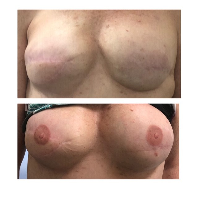 3-D Areola Tattooing
